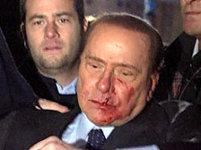 Berlusconi verwond