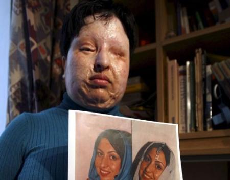 Geen'oog-om-oog'-actie in Iran