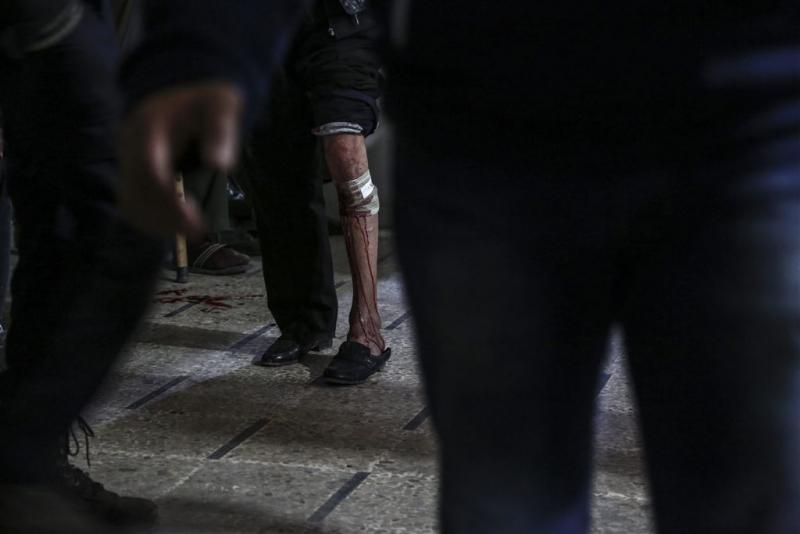 Syrië kampt met 'vleesetende' ziekte