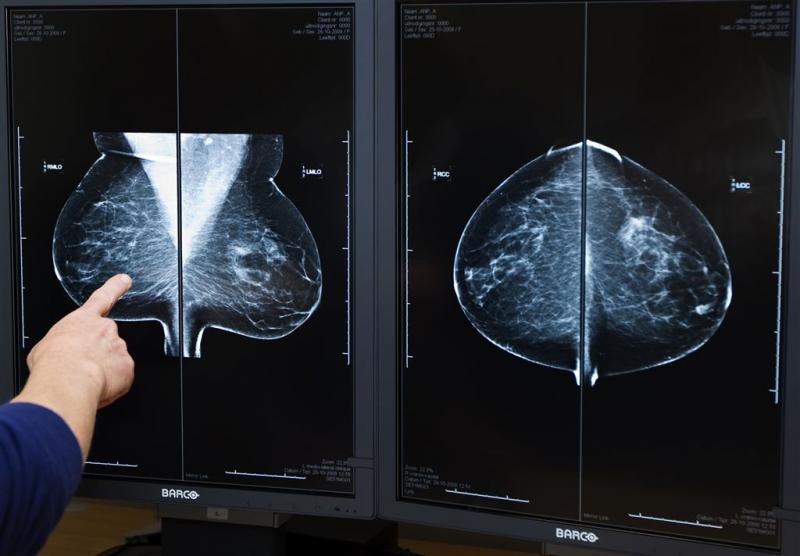 hormoongevoelige borstkanker