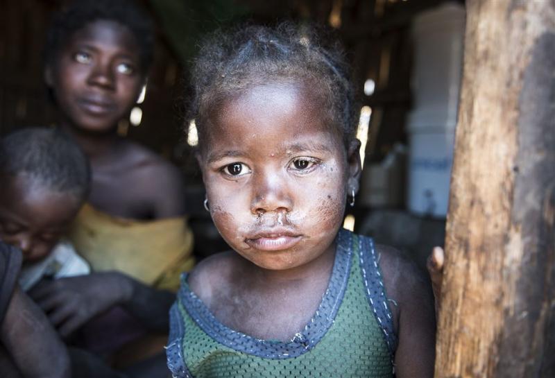 Honger op Madagaskar
