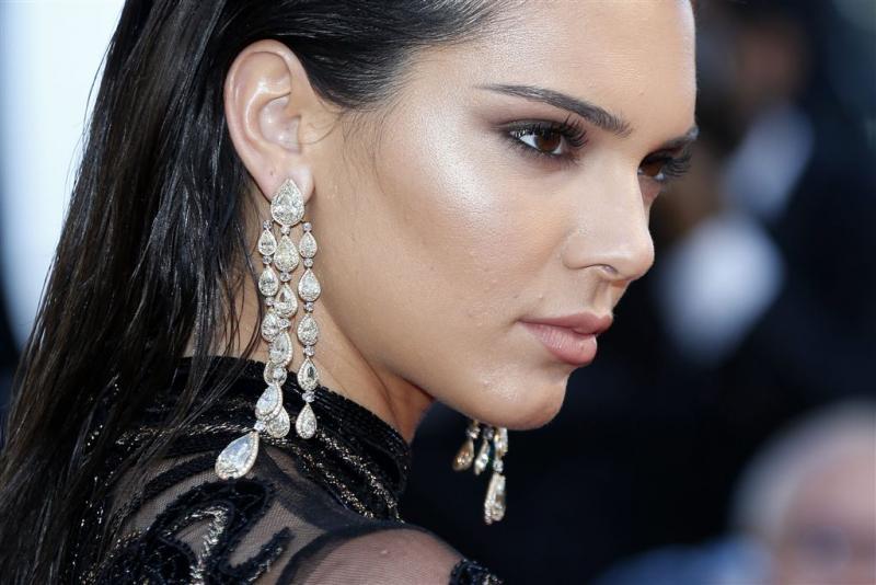'Ook lipinjecties voor Kendall Jenner'