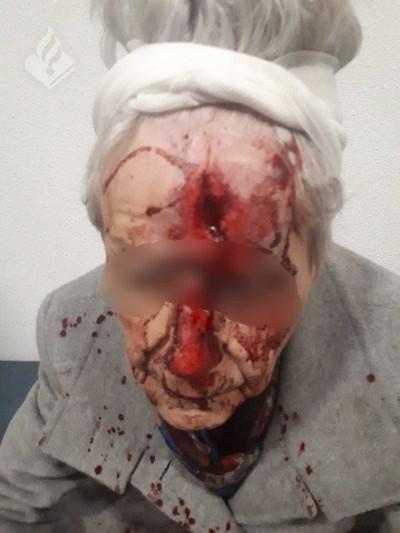 Bejaarde vrouw gewond bij laffe straatroof